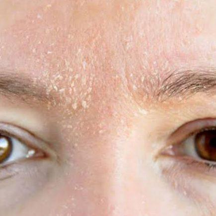 Cara-mengatasi-kulit-kering-pada-wajah