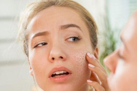 cara menghilangkan kulit kering di wajah